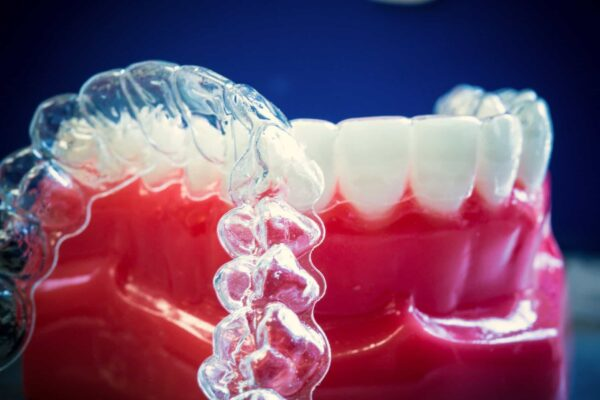 Damon Clear Invisalign 3 Fergus Ortho 600x400 - Braces vs. Invisalign: Which Is Right for You?