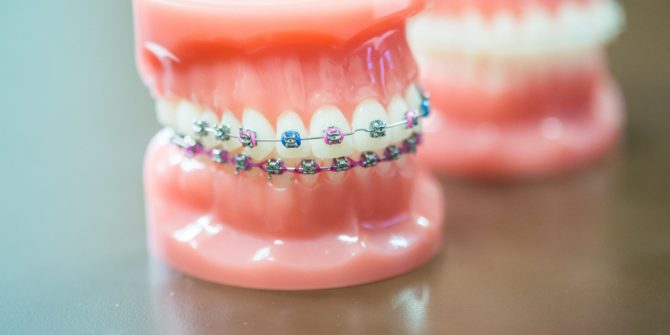Fergus Orthodontics Jonesboro Arkansas General Shots 123 670x335 - Braces for Adults, Teens and the Entire Family in Jonesboro Arkansas