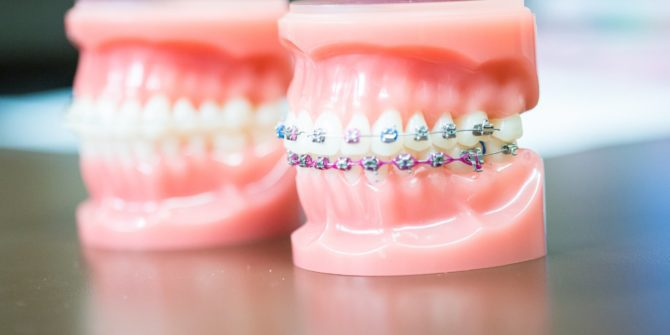 Fergus Orthodontics Jonesboro Arkansas General Shots 126 670x335 - Braces for Adults, Teens and the Entire Family in Jonesboro Arkansas
