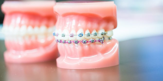 Fergus Orthodontics Jonesboro Arkansas General Shots 127 670x335 - Braces & Invisalign Treatment Options in Jonesboro Arkansas