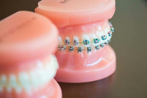Fergus Orthodontics Jonesboro Arkansas General Shots 153 600x400 - Braces vs. Invisalign: Which Is Right for You?