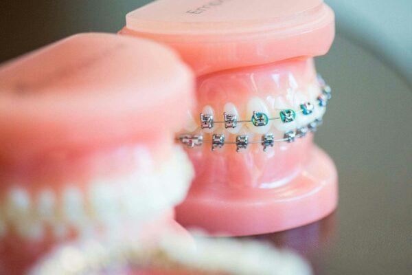 Fergus Orthodontics Jonesboro Arkansas General Shots 159 600x400 - Braces vs. Invisalign: Which Is Right for You?