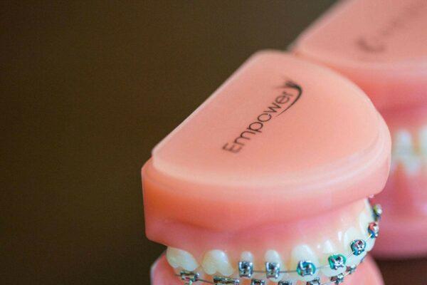 Fergus Orthodontics Jonesboro Arkansas General Shots 167 600x400 - Braces vs. Invisalign: Which Is Right for You?