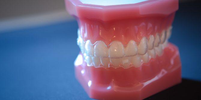 Fergus Orthodontics Jonesboro Arkansas Invisalign 1 of 4 670x335 - Invisalign & Invisalign Teen