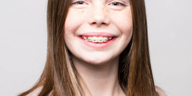 Fergus Orthodontics Jonesboro Arkansas Patient Portraits 38 670x335 - Our Beautiful Smiles